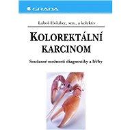 Kolorektální karcinom - Luboš Holubec, kolektiv a