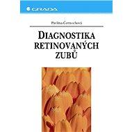 Diagnostika retinovaných zubů - Pavlína Černochová