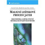 Maligní ložiskové procesy jater - Vlastimil Válek, Zdeněk Kala, Igor Kiss, kolektiv a