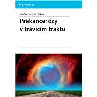 Prekancerózy v trávicím traktu - Jiří Černoch, kolektiv a