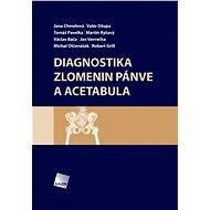 Diagnostika zlomenin pánve a acetabula - Jana Chmelová, Valér Džupa, Tomáš Pavelka, Václav Báča , Jan Vavrečka